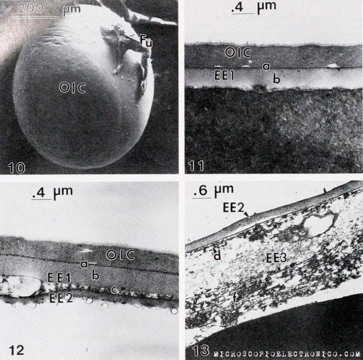 Imágenes de micrografía electrónica de transmisión de embriones